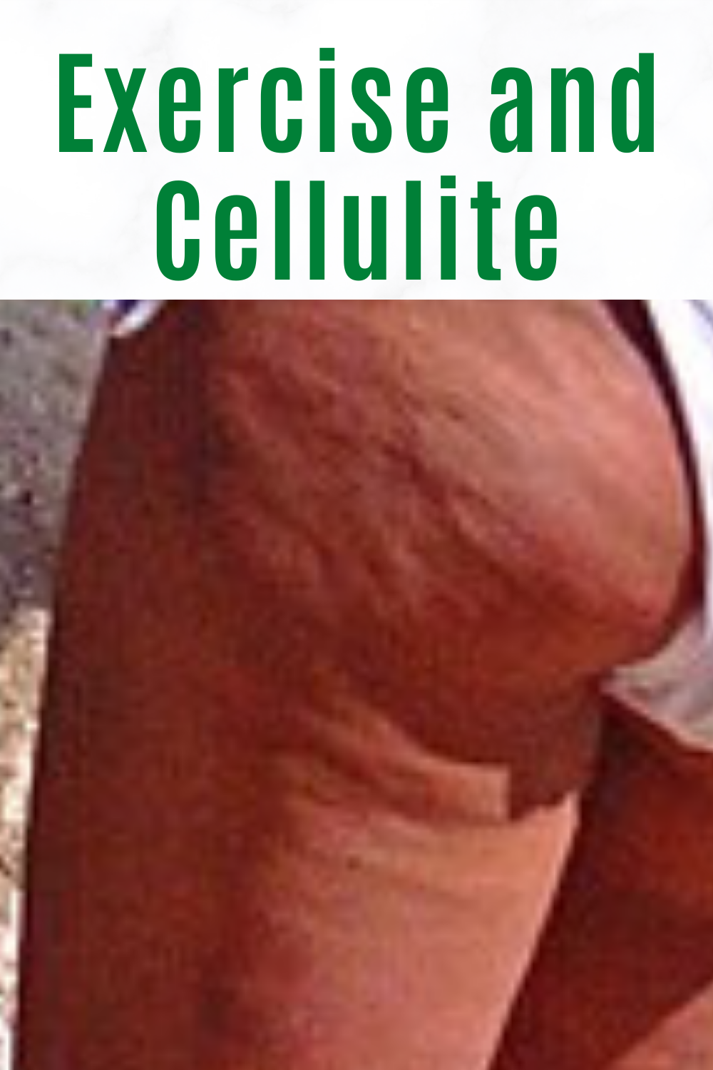 Exercise and Cellulite